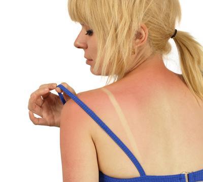 Harmful Sunburn